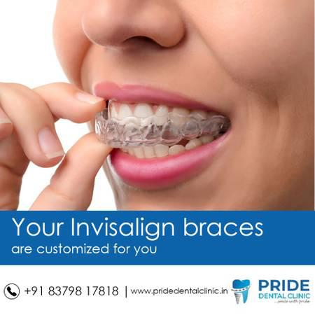 Dental implants in Kopar khairane | Pride Dental Clinic -