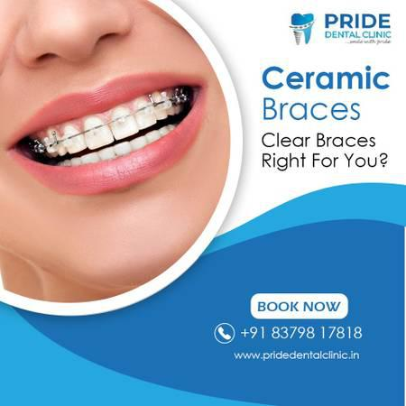 Invisalign treatment in Kopar khairane | Pride Dental Clinic