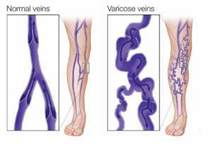 Are you suffering from Varicose Veins problem? - beauty