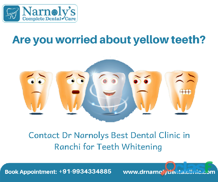 Best dentist in ranchi dr narnolys dental clinic