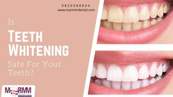 Is teeth whitening safe for your teeth? - beauty services