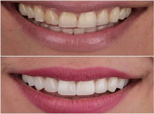Teeth whitening in delhi - beauty services