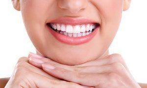 Cost of teeth whitening in delhi