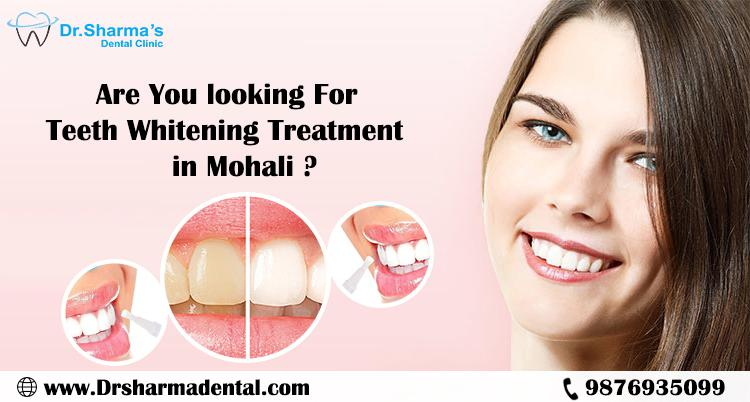 Teeth whitening services in tricity