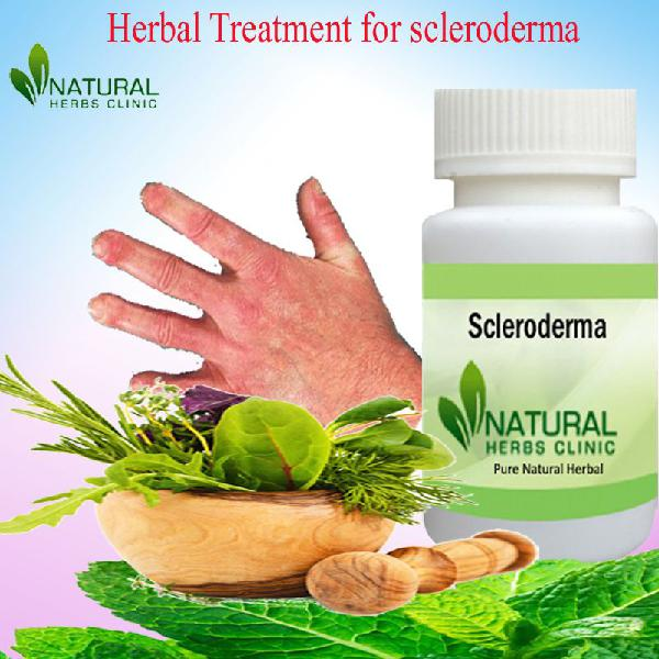 Buy herbal product for scleroderma complete treatment